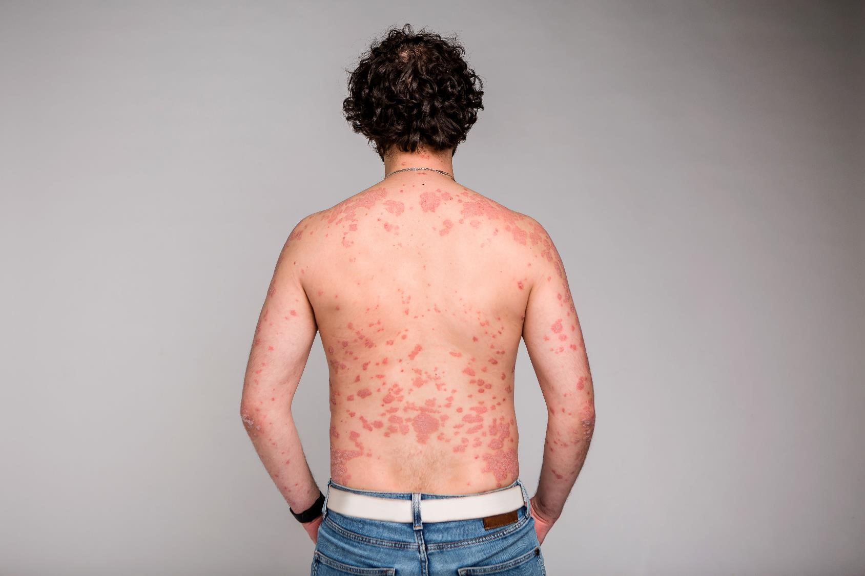Linking psoriasis with mental health